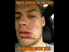 Captain Getzy - puck to the face (4-16-14)