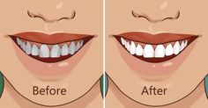 Is there a secret for a beautiful smile and fresh breath? The answer is very surprising and interesting. Oil pulling is an age-old method for oral health. It's popping up again as a go-to remedy for gingivitis, plaque, teeth-whitening, and bad breath. Health Heal, Oral Health, Diy Beauty, Beauty Hacks, Plaque Removal, What Is The Secret, Oil Pulling, Natural Home Remedies, Beautiful Smile