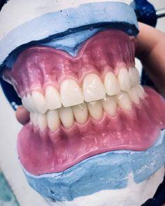 Pin by ivishaktooth on OrganizARTE | Teeth implants, Dental