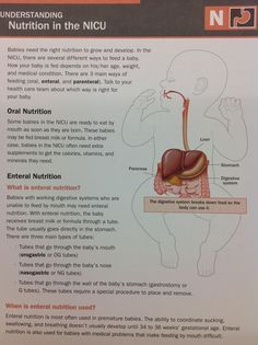 Leren over voeding in de NICU! Nursing School Tips, Nursing Tips, Postpartum Nursing, Neonatal Nursing, Ob Nursing, Student Midwife, Pediatric Nursing, Midwifery, Nurse Life