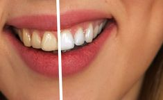 Before and after oil pulling with coconut oil. It's incredible what oil pulling can do for the teeth! Best Teeth Whitening Kit, Teeth Whitening Remedies, Natural Teeth Whitening, Implants Dentaires, Dental Implants, Dental Surgery, Teeth Surgery, Tooth Sensitivity, Dental Health