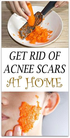 How to get rid of acne scars with carrots