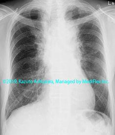 10. 間質性肺炎 症例095:放射線肺障害 胸部単純X線写真,『コンパクトX線アトラスBasic 胸部単純X線写真アトラス vol.1 肺』 Radiology