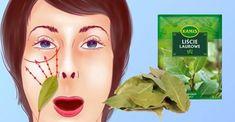 Ze surovin, které nás obklopují každý den, lze vyrobit mnoho úžasné kosmetiky.Často si ani neuvědomujeme jejich sílu. Tato skupina zahrnuje bobkový list.Tato nenápadná bylina má vlastnosti protistárnutí, má antioxidačnívlastnostia dodává pokožce záři. Při pravidelném používání pomáhá vyrovnat barvu, zúžit póry a učinit pokožku pružnější.Bobkový list stimuluje regeneraci pokožky, dezinfikuje a podporuje léčbu mnoha kožních onemocnění.Může […] Body Mask, Natural Cures, Woodworking Shop, The Cure, Beauty Hacks, Health Fitness, Herbs, Skin Care, Makeup