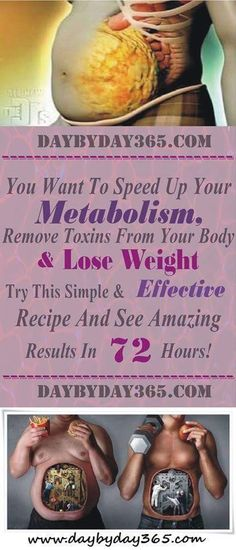 Repin - You Want To Speed Up Your Metabolism, Remove Toxins From Your Body And Lose Weight? Try This Simple And Effective Recipe And See Amazing Results In 72 Hours!