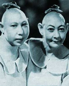 """2 """"pinhead"""" girls in a 1940s sideshow - """"pinheads"""" were really people with microcephaly"""