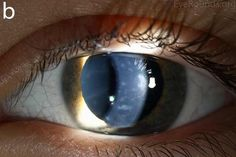 Posterior Polymorphous Corneal Dystrophy (PPMD)