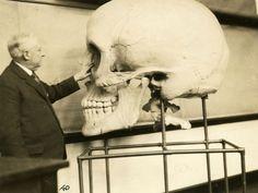 Harris P. Mosher - Harvard Medical School 1929- crâne géant  conçu pour une exposition 1890.