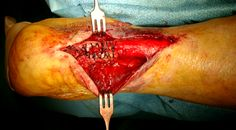 Image result for achilles tendon rupture