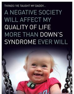 Do you want to know more about Down Syndrome? Here are some Down Syndrome quotes which can make things clear and help you in improving the quality of life of the affected persons. Down Syndrome Quotes, Down Syndrome And Autism, Down Syndrome Baby, Down Syndrome Awareness, Cool Baby, Precious Children, Beautiful Children, Happy Children, Disability Quotes