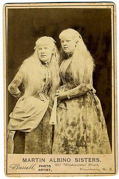 Albino Sisters in 1890's Cabinet Card