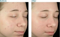 Before and After: IPL (intense pulse light) for acne Cystic Acne Essential Oil, Skin Treatments, Cystic Acne On Chin, Acne Reasons, Acne Medicine, Intense Pulsed Light, Skin Care Center, How To Get Rid Of Acne