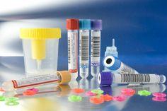 Los pacientes con diabetes tipo 1 deben revisar sus niveles de cetonas más a menudo