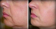 Καθώς γερνάμε, το δέρμα μας χάνει την ελαστικότητά και την σφριγηλότητα του. Ευτυχώς, αυτά τα δύο απλά συστατικά μπορούν να καταπολεμήσουν τις ρυτίδες και