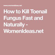How to Kill Toenail Fungus Fast and Naturally - WomenIdeas.net