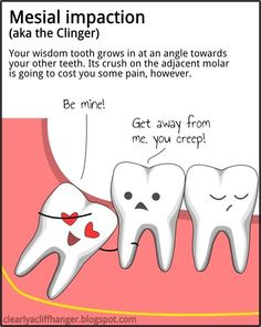 Mesial impaction - the clinger. #Dental humor. Natalie Lenser, DDS - pediatric dentist in Modesto, CA @ www.toothfairyteam.com