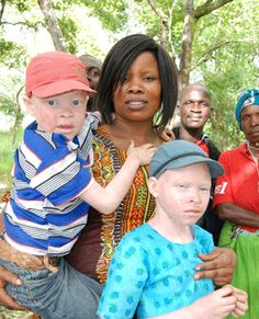 "Criminal gangs nicknamed ""albino hunters"" and armed with machetes, knives and axes are striking fear into people living with albinism in Malawi, abducting and often killing their victims in broad daylight and in the dead of night, prompting police to announce a shoot-to-kill policy."