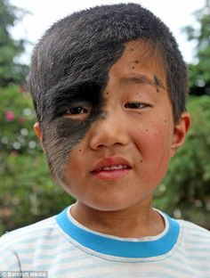 What a beautiful boy under that Birthmark: An Qi, from Dehui, in the Jilin Province of China, was born with a condition which sees hair grow down the side of his face. He was offered free surgery!