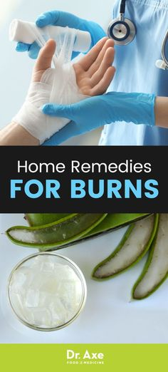 Wondering how to treat a burn at home? I'm sharing the best natural remedies that can reduce the risk of infection and help areas heal without scarring. Home Remedies For Colds For Babies, Home Remedies For Uti, Scar Remedies, Holistic Remedies, Herbal Remedies, Burn Skin Home Remedies, Natural Remedies For Burns, Natural Health Remedies, Natural Medicine