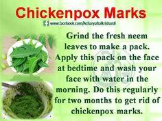 Chickenpox Marks