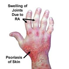 How To Naturally Cure Psoriatic Arthritis