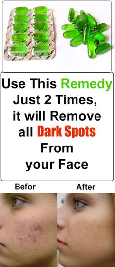 Dark black/brown spots usually appear on our skin because of pimples or accidents and mostly they take lot of time to disappear from your skin but today I will share one natural remedy that is supe…