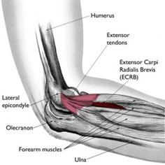 9 Most Amazing Natural Cure For Tennis Elbow