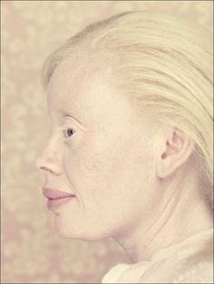 Albinos Project by Gustavo Lacerda -- Portrait Photography