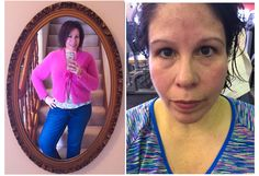 Working out after Bariatric Weight Loss surgery | Getting to Gym in the ...