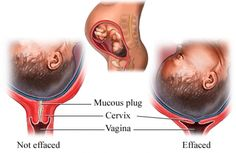 The Signs and Stages of Labor