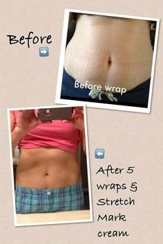 1 month supply of It Works! stretch mark cream and after 5 skinny wraps! Stretch Mark Cream, Stretch Marks, It Works Products, Wraps, Health Fitness, Weight Loss, How To Get, Skinny, Workout