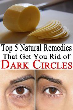 Top 5 Natural Remedies That Get You Rid of Dark Circles