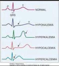 ♡ & electrolytes