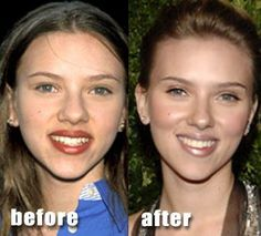 25 Celebrity Nose Jobs (rhinoplasty) before and after pics Scarlett Johansson Nose Job Before After Always interesting what you can find when you type in surgeons and other related terms Plastic Surgery Photos, Celebrity Plastic Surgery, Celebrities Before And After, Celebrities Then And Now, Scarlett Johansson, Bulbous Nose, Rhinoplasty Before And After, Nose Surgery, Rhinoplasty Surgery