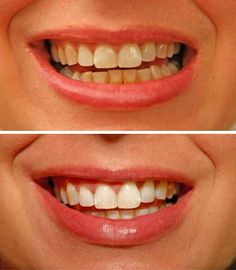 Some tips for keeping teeth white and bright include cutting down on coffee, wine or dark spaghetti sauces. Learn how to maintain white teeth with information from your dental hygienist.
