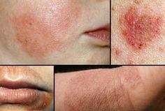 Natural Remedies to Eczema  HealthyTipsAdvice http://ift.tt/2rSeXtm