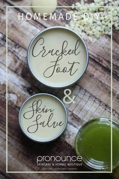 DIY Cracked Foot & Heel Salve Recipe A super simple, crazy effective DIY Cracked Foot and Heel Salve Recipe which will absolutely get your feet ready for spring and summer. Get the recipe here! • pronounceskincare.com