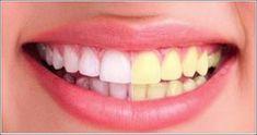 Solo necesita tres minutos y este potente remedio para eliminar el sarro y esos dientes amarillos