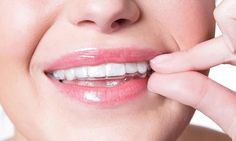 The essix retainers is a treatment to arrange teeth in correct position and make the teeth to be attractive when smiling. Essix treatment became famous among the orthodontist and this essix guide i… Dental Braces, Dental Implants, Smile Design, Spa Deals, Beauty Spa, Orthodontics, Teeth Whitening, 3 D, Remote