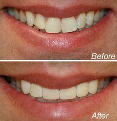cosmetic dentist new york city Dentist Nyc, Celebrity Dentist, Cosmetic Dentistry, White Teeth, Teeth Whitening, Cosmetics, York, City, Celebrities