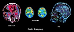 Brain Imaging: Pet Scan, Cat Scan, MRI