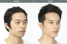 Male Korean Plastic Surgery Before And After