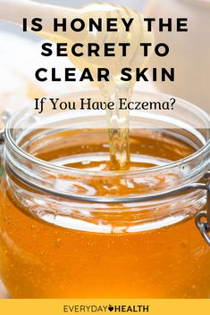 Learn more about the potential benefits of #honey for eczema.