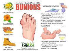 Health Beauty Remedies home remedies for bunions beauty and health tips Holistic Remedies, Natural Health Remedies, Natural Cures, Holistic Healing, Natural Beauty, Bunion Remedies, Foot Remedies, Hair Remedies, Get Rid Of Bunions