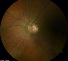 Disc hemes, glaucoma, vitreous heme Eye Anatomy, Eyes, Human Eye
