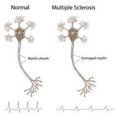esclerosis multiple - Buscar con Google