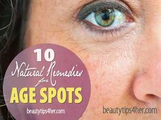 Home Remedies For Age Spots – Age Graciously with Natural Remedies   Beauty and MakeUp Tips
