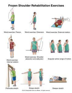 Summit Medical Group - Frozen Shoulder Exercises