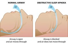 Obstructive Sleep Apnea Diagram - See more sleep apnea tips at StopSnoringPlease.com