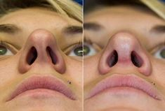 Everything You Need to Know About Functional #Rhinoplasty (#Septoplasty) -Via Thomas Lamperti, MD #NoseJob